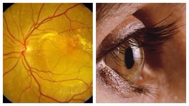 Макулодистрофии сетчатки глаза лечение