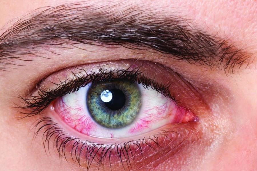 Гипосекреция слезы