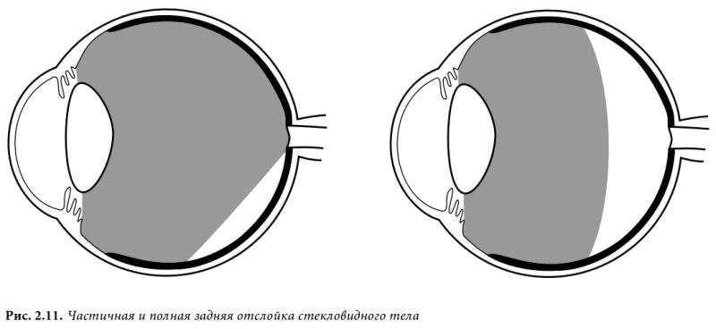 Отслойка стекловидного тела глаз